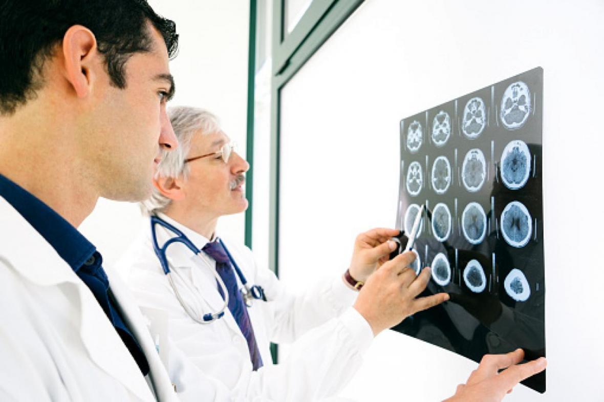 سکته خفیف مغزی؛ علایم و پیشگیری